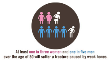 Osteoporosis-Bone-Scan-Promotion-Stats