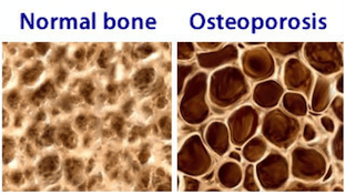 Osteoporosis-Bone-Scan-Promotion-effects